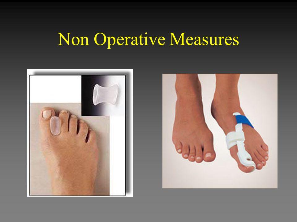Non Operative Measures