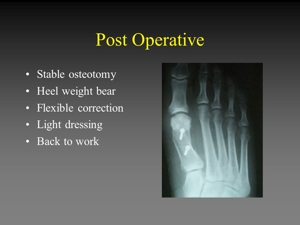Post Operative Stable osteotomy Heel weight bear Flexible correction