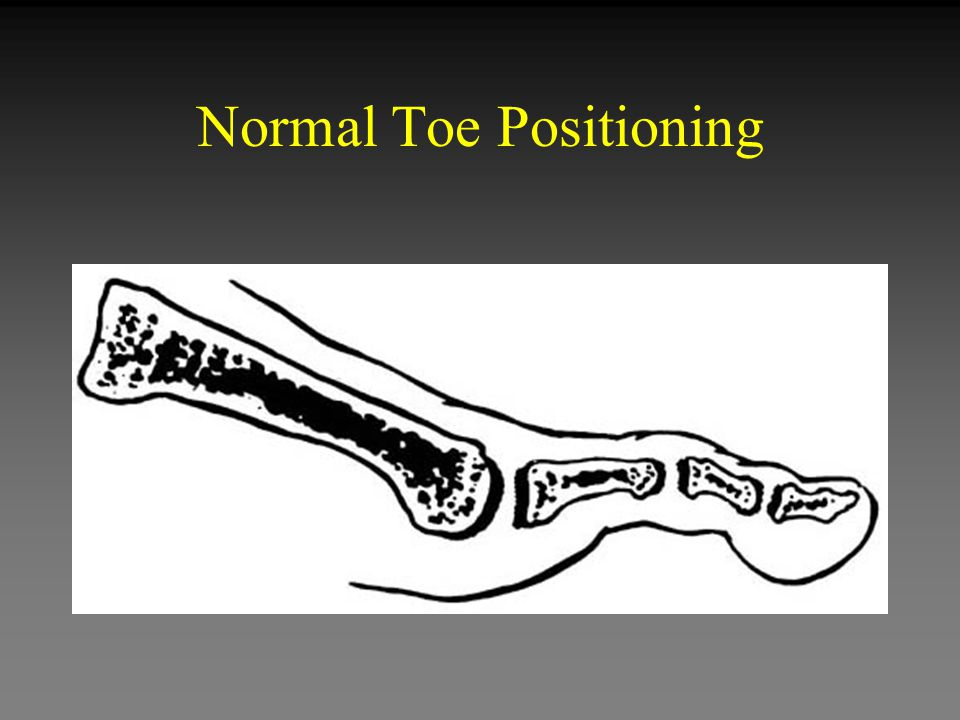 Normal Toe Positioning