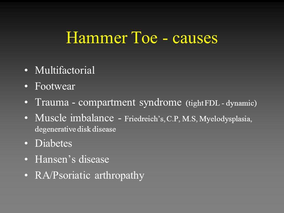 Hammer Toe - causes Multifactorial Footwear
