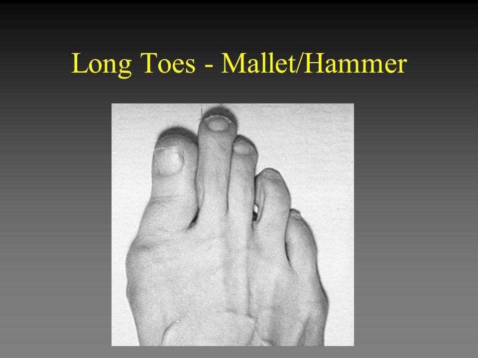 Long Toes - Mallet/Hammer