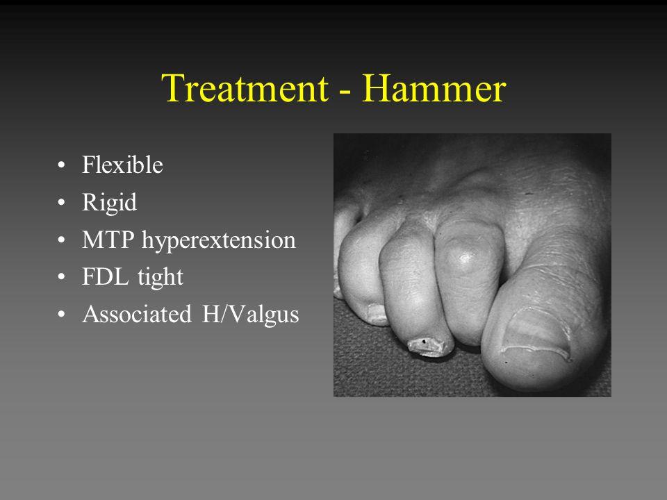 Treatment - Hammer Flexible Rigid MTP hyperextension FDL tight