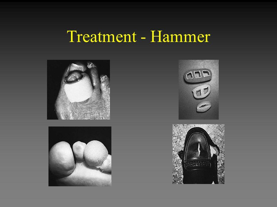 Treatment - Hammer