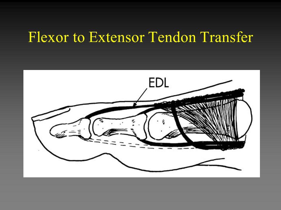 Flexor to Extensor Tendon Transfer