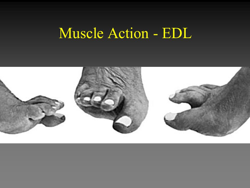 Muscle Action - EDL