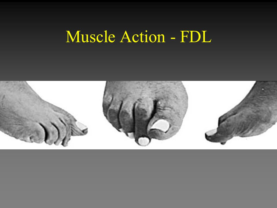 Muscle Action - FDL