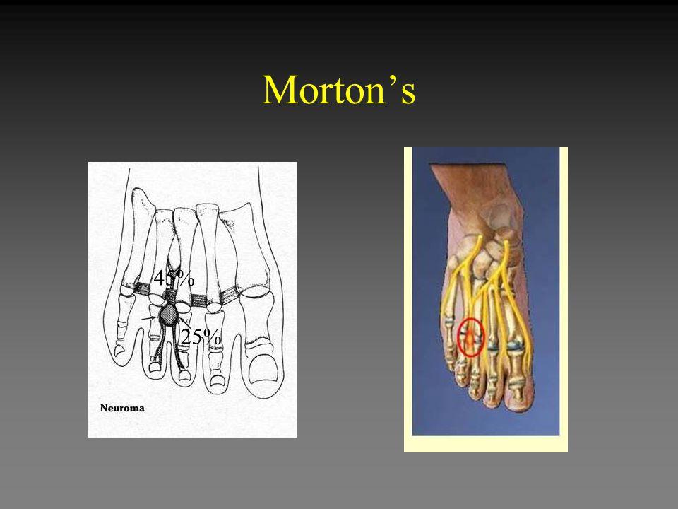 Morton's 45% 25%