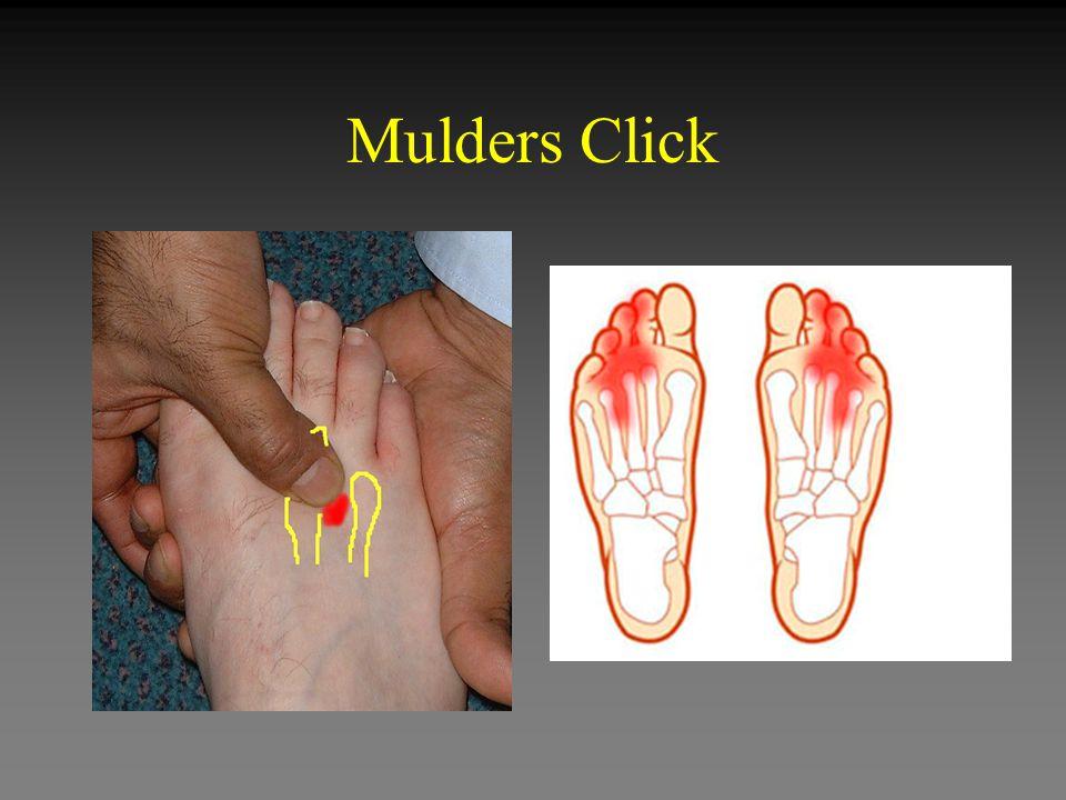Mulders Click