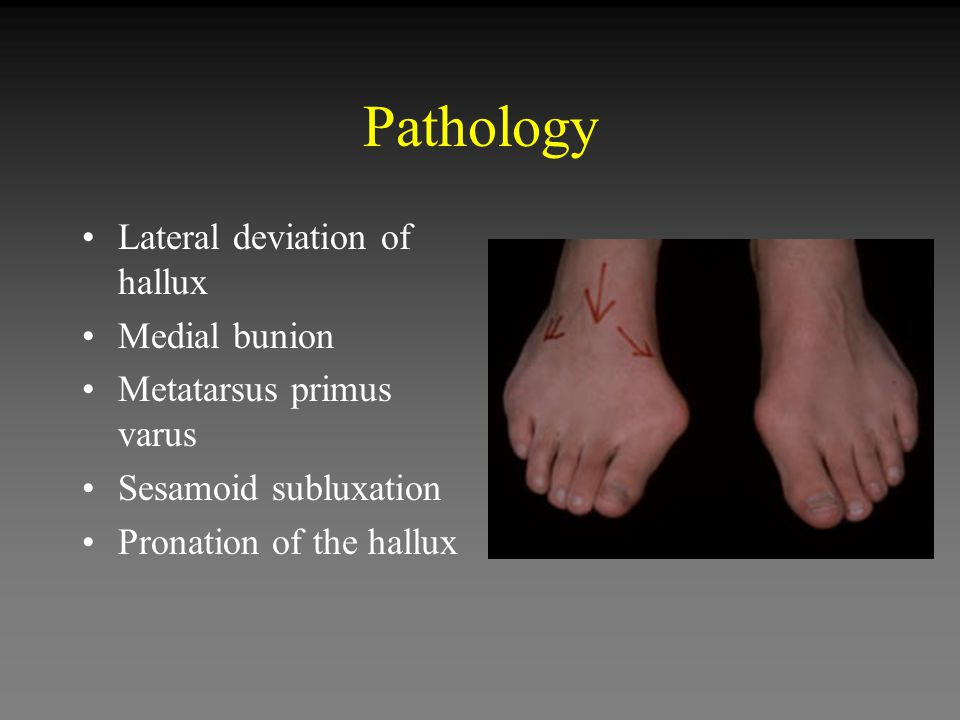 Pathology Lateral deviation of hallux Medial bunion