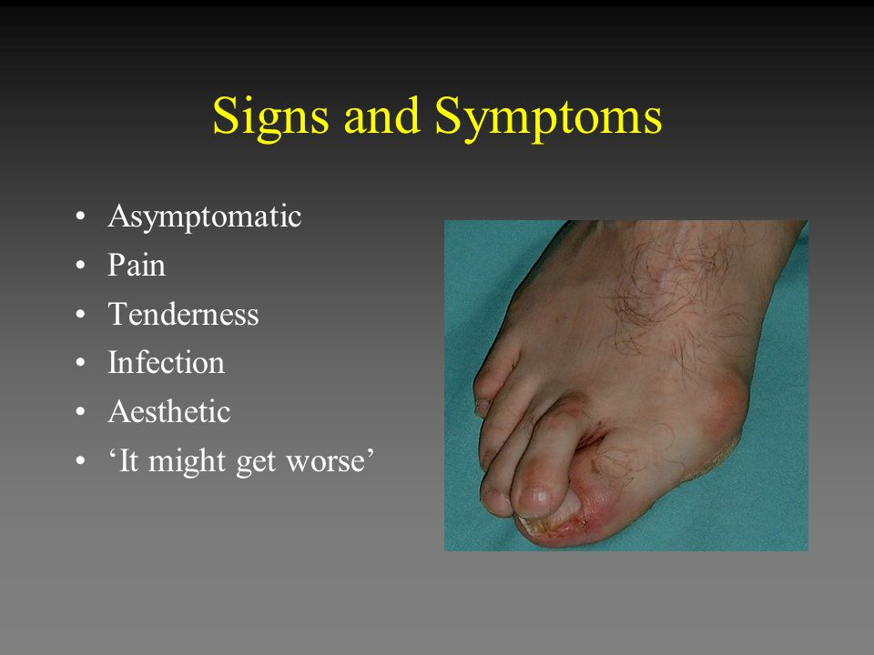 Signs and Symptoms Asymptomatic Pain Tenderness Infection Aesthetic