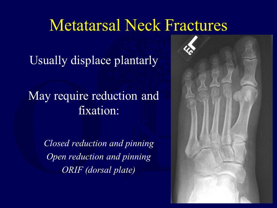 Metatarsal Neck Fractures