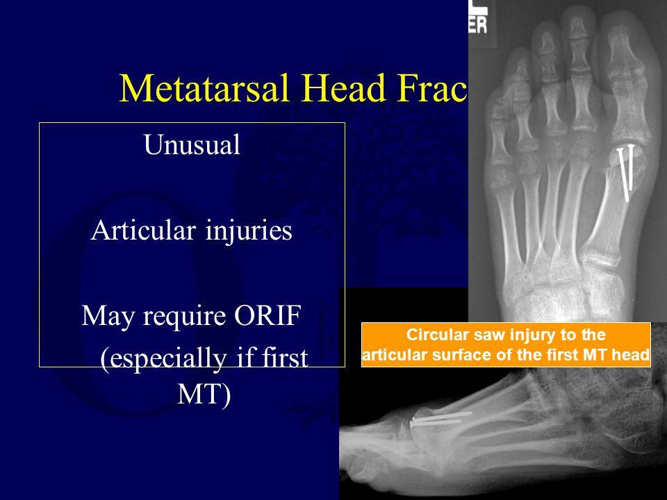 Metatarsal Head Fractures