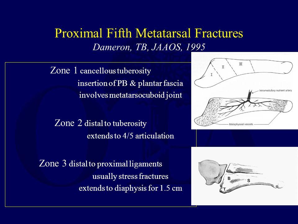 Proximal Fifth Metatarsal Fractures Dameron, TB, JAAOS, 1995