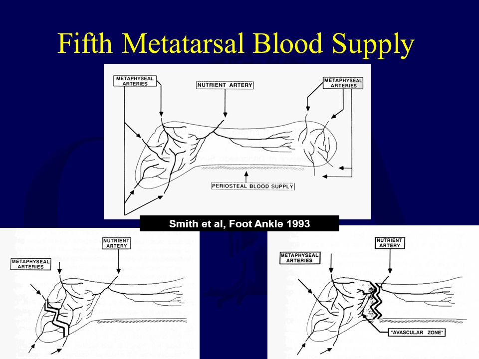 Fifth Metatarsal Blood Supply