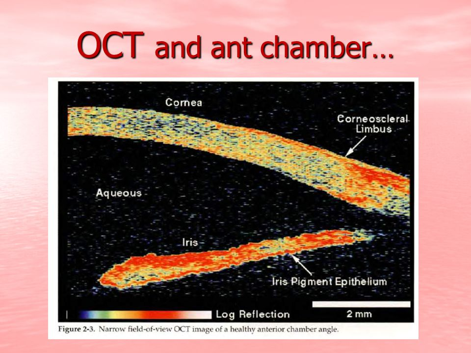 OCT and ant chamber…