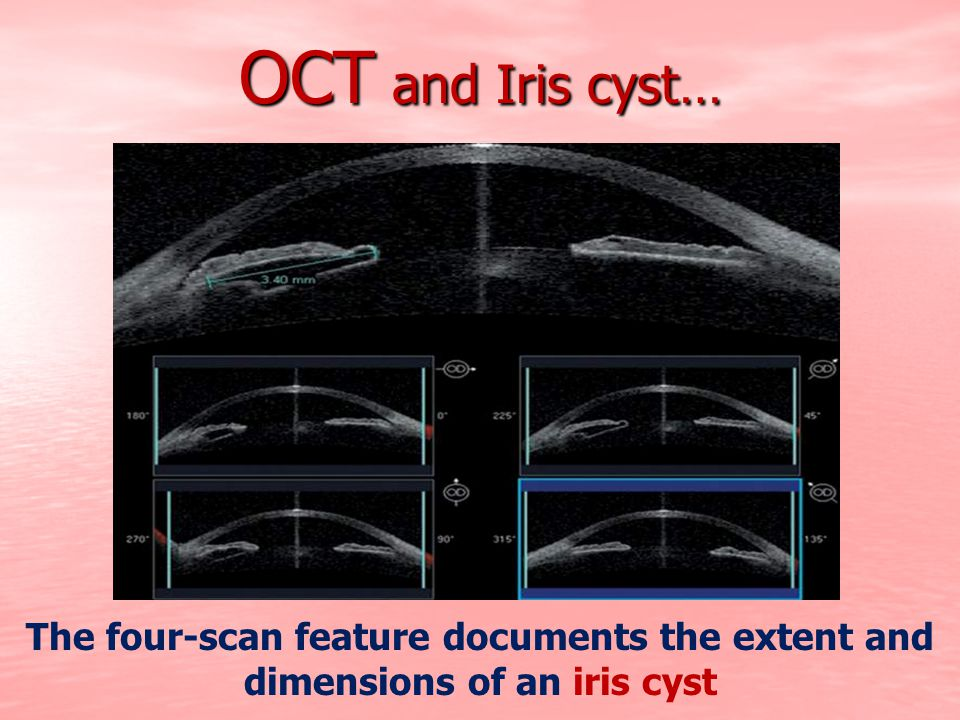 OCT and Iris cyst… The four-scan feature documents the extent and dimensions of an iris cyst