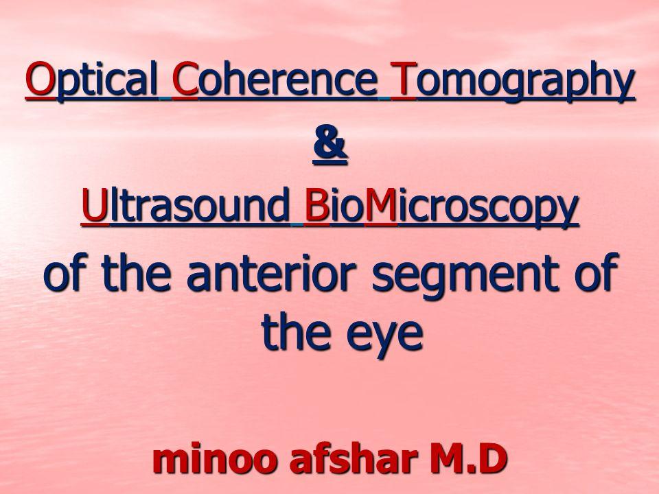 of the anterior segment of the eye