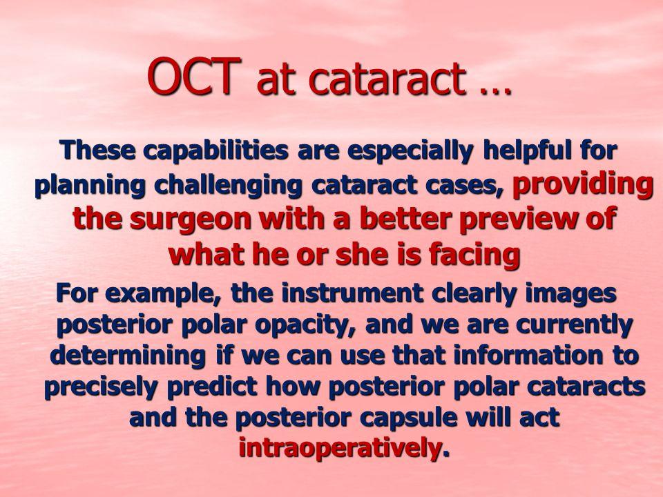 OCT at cataract …