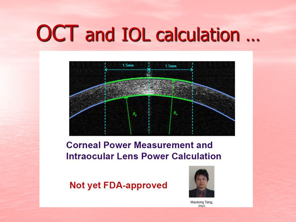OCT and IOL calculation …