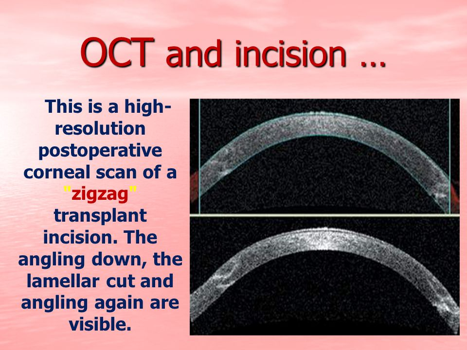 OCT and incision …