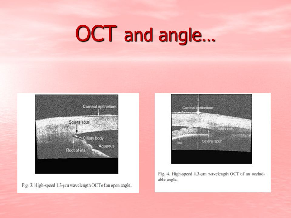 OCT and angle…