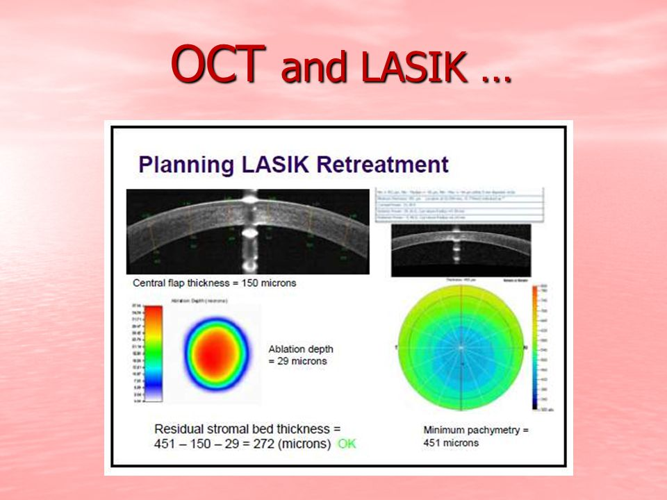OCT and LASIK …