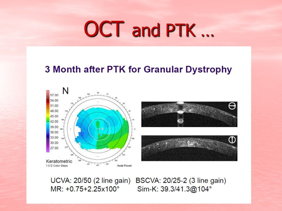 OCT and PTK …