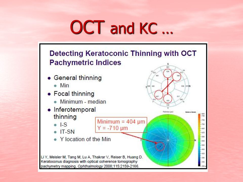 OCT and KC …
