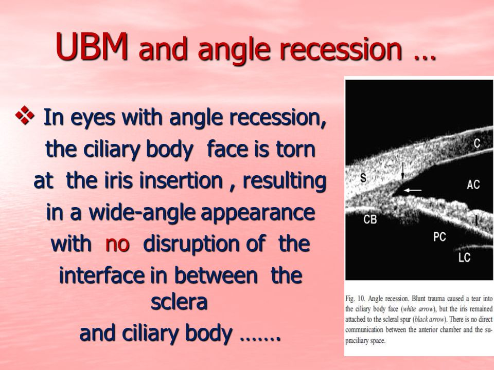 UBM and angle recession …