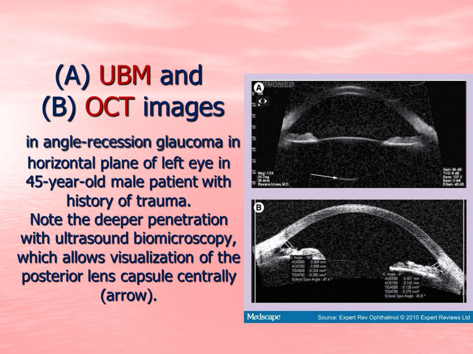 (A) UBM and (B) OCT images in angle-recession glaucoma in horizontal plane of left eye in 45-year-old male patient with history of trauma.