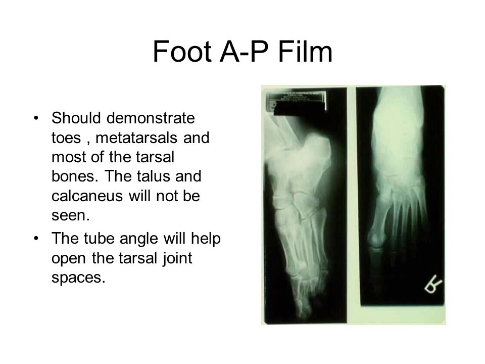Foot A-P Film Should demonstrate toes , metatarsals and most of the tarsal bones. The talus and calcaneus will not be seen.
