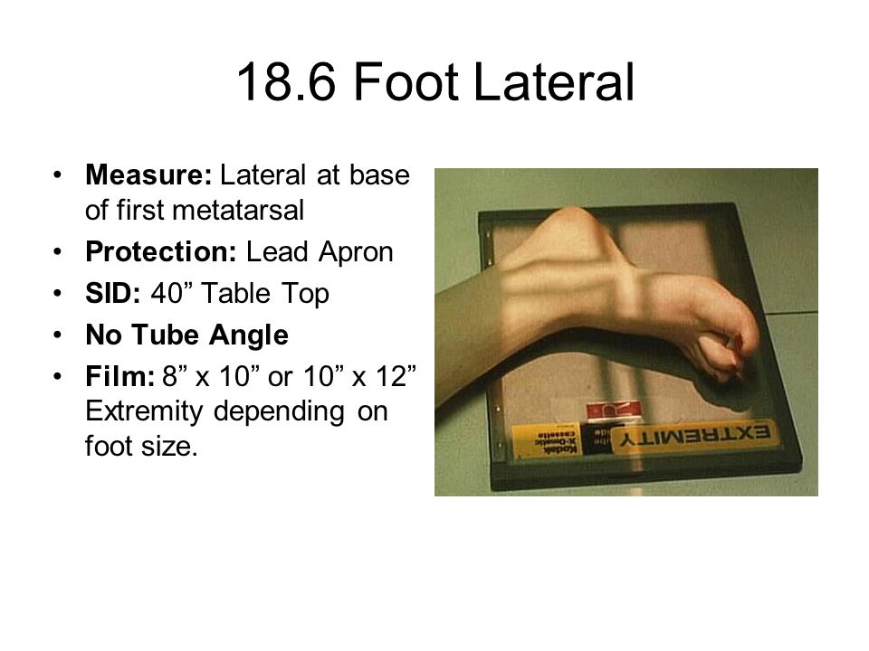 18.6 Foot Lateral Measure: Lateral at base of first metatarsal