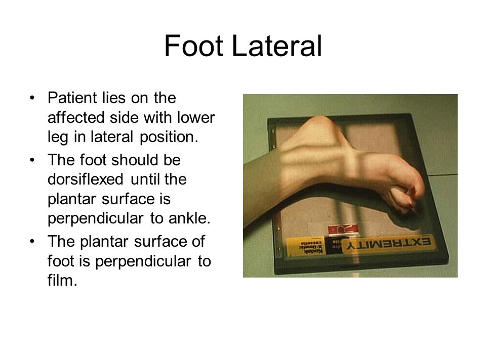 Foot Lateral Patient lies on the affected side with lower leg in lateral position.