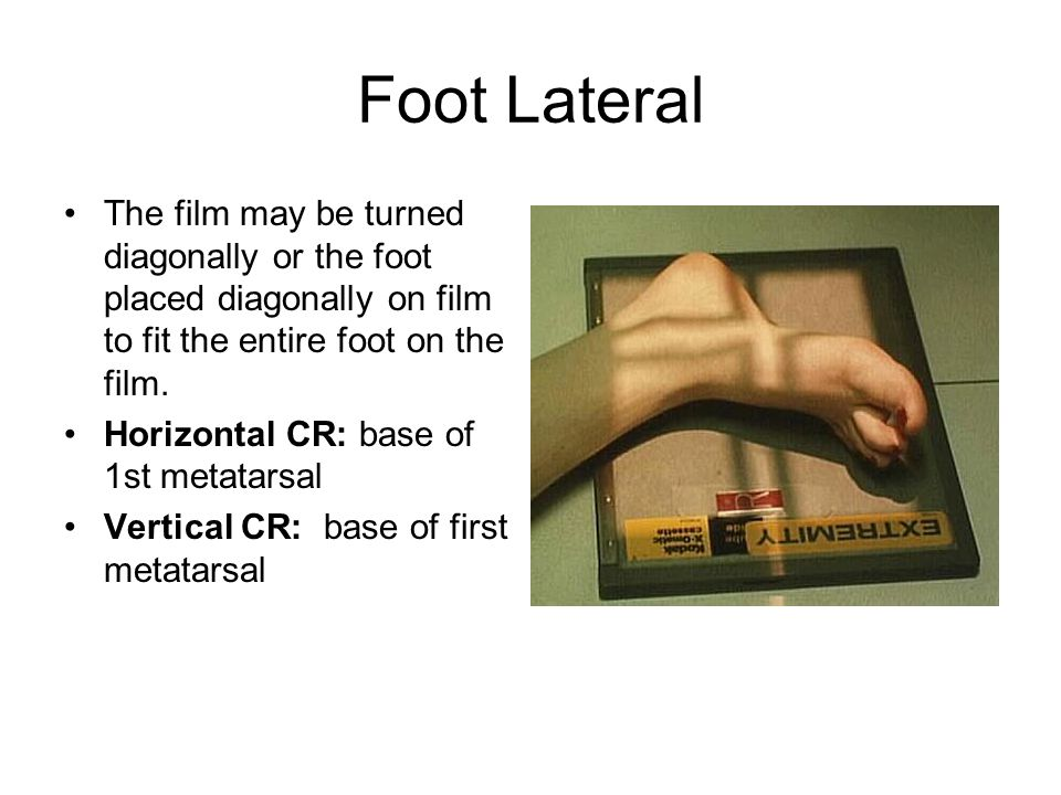 Foot Lateral The film may be turned diagonally or the foot placed diagonally on film to fit the entire foot on the film.
