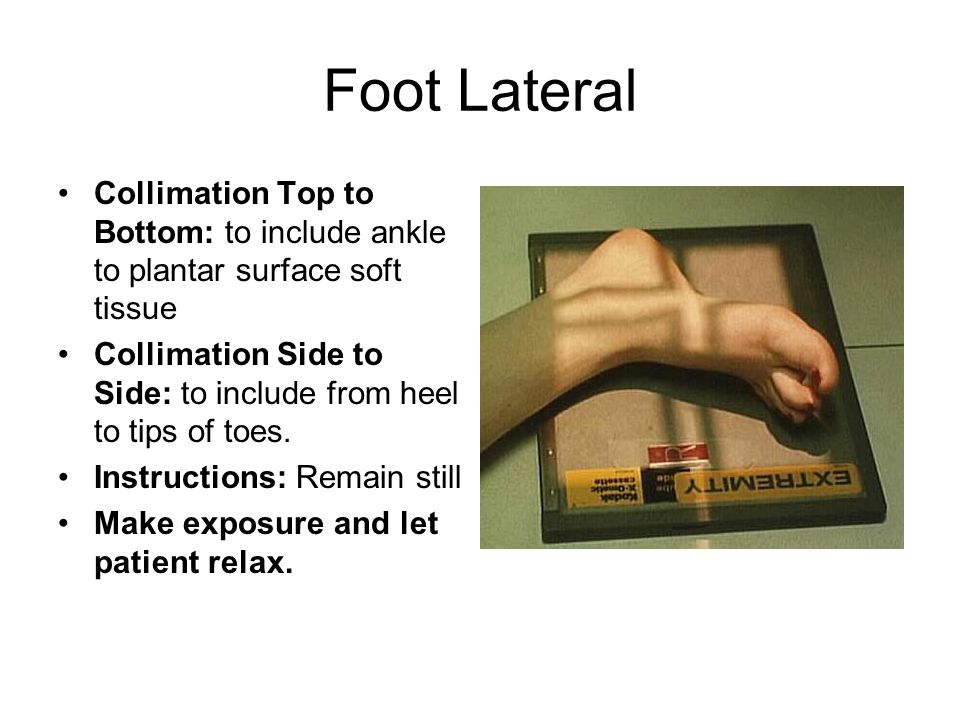 Foot Lateral Collimation Top to Bottom: to include ankle to plantar surface soft tissue.