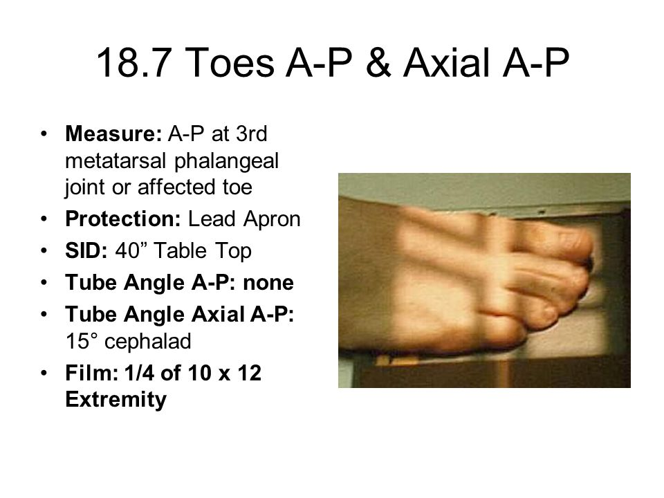 18.7 Toes A-P & Axial A-P Measure: A-P at 3rd metatarsal phalangeal joint or affected toe. Protection: Lead Apron.
