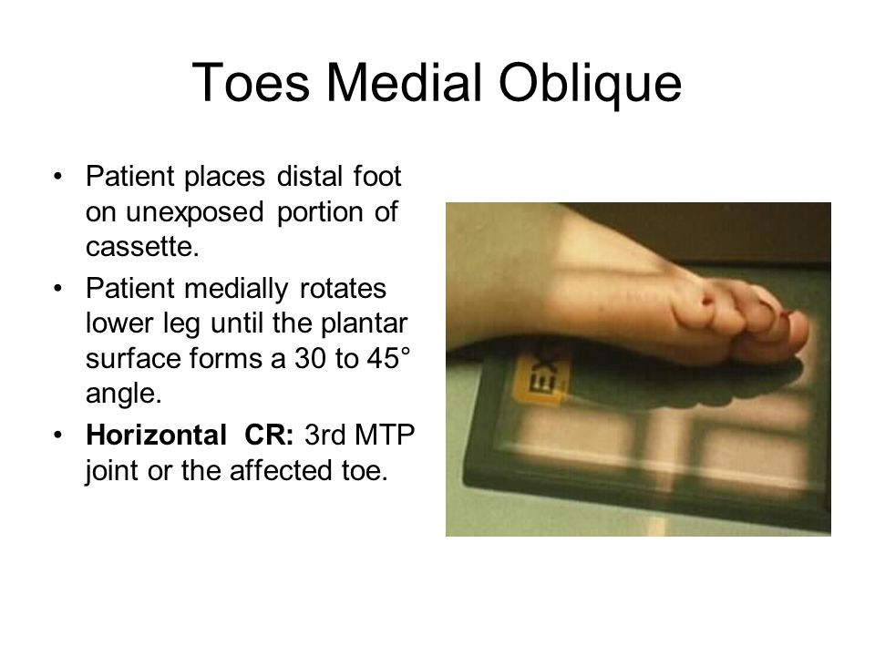 Toes Medial Oblique Patient places distal foot on unexposed portion of cassette.