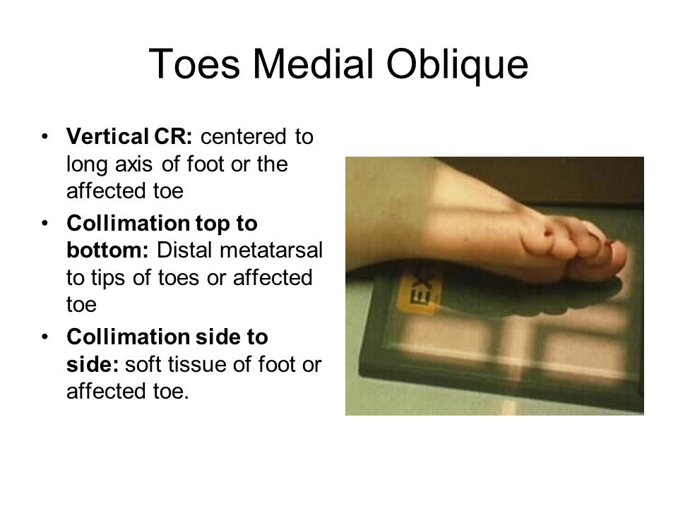 Toes Medial Oblique Vertical CR: centered to long axis of foot or the affected toe.