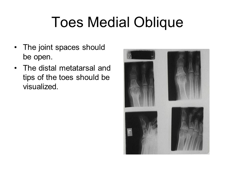 Toes Medial Oblique The joint spaces should be open.