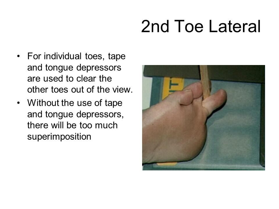 2nd Toe Lateral For individual toes, tape and tongue depressors are used to clear the other toes out of the view.