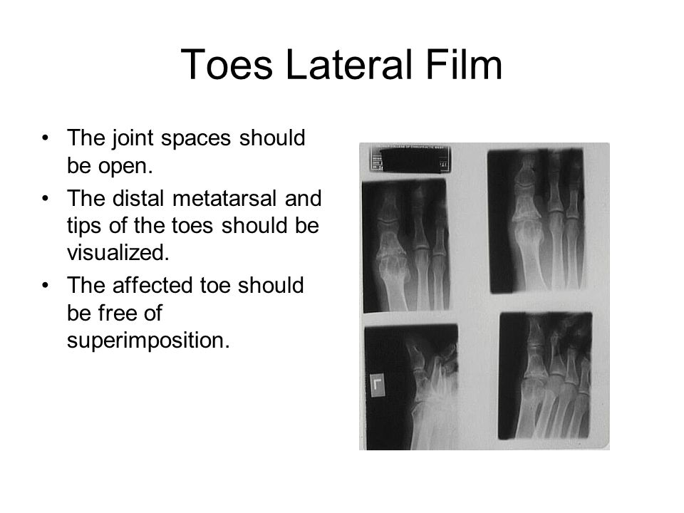Toes Lateral Film The joint spaces should be open.