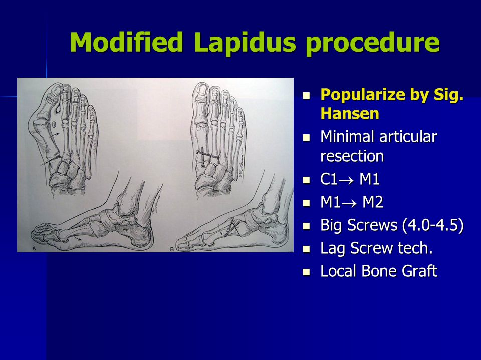 Modified Lapidus procedure