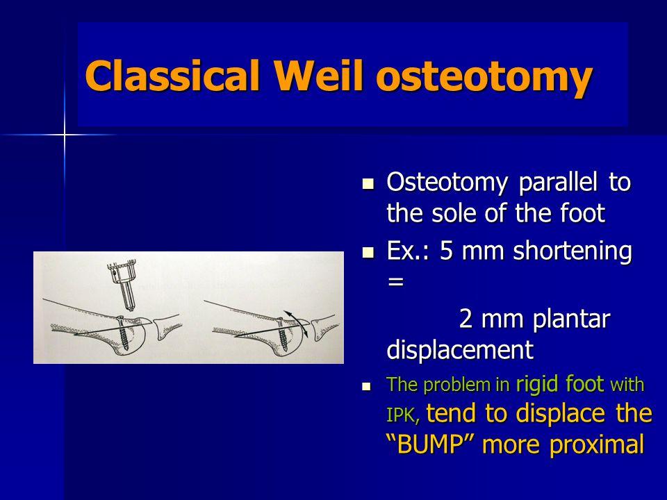 Classical Weil osteotomy