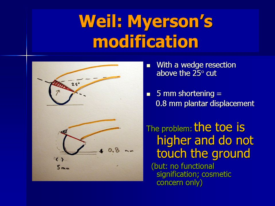 Weil: Myerson's modification