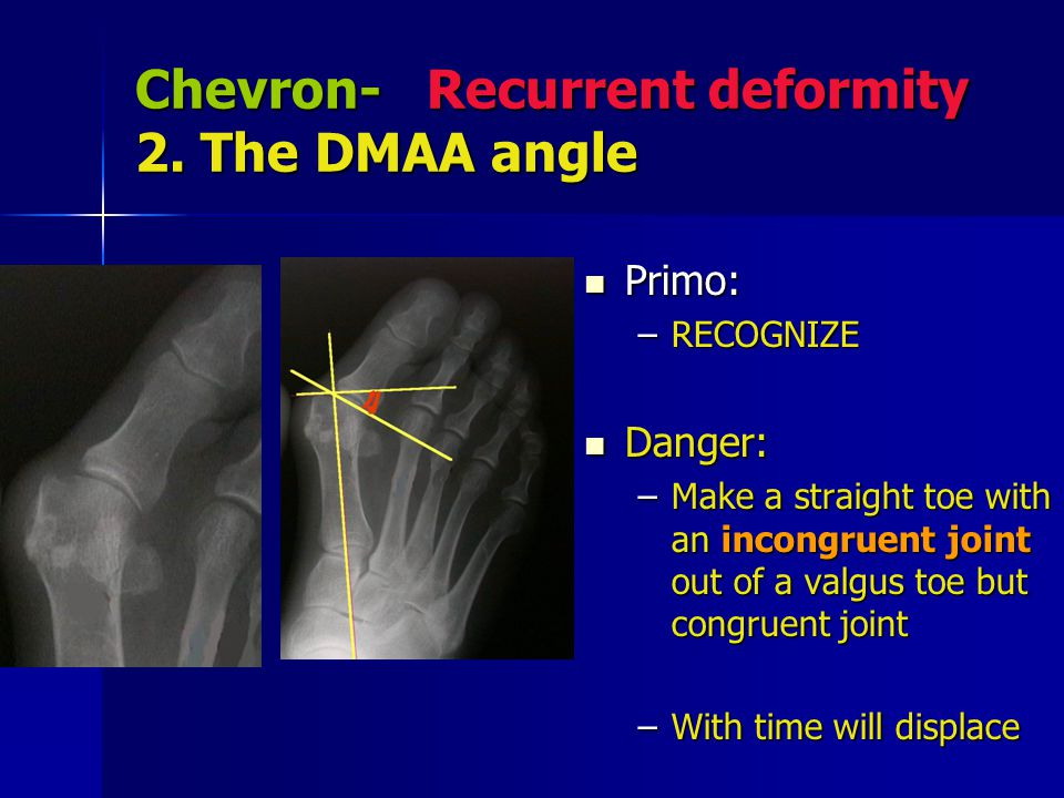 Chevron- Recurrent deformity 2. The DMAA angle