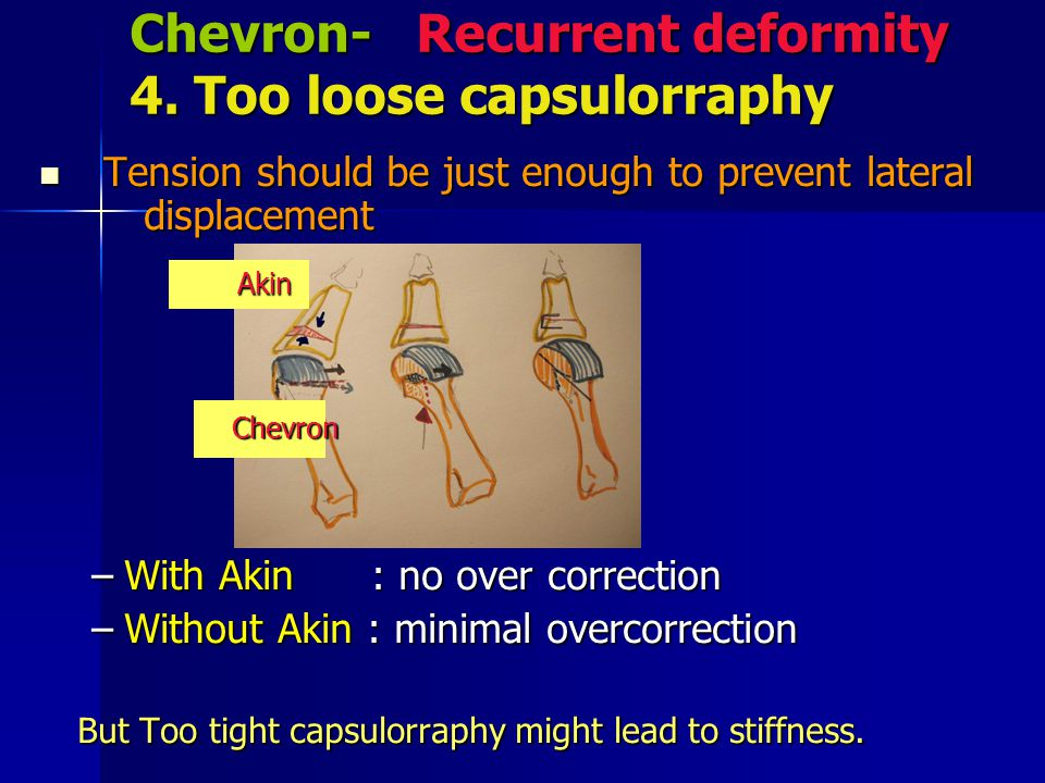 Chevron- Recurrent deformity 4. Too loose capsulorraphy