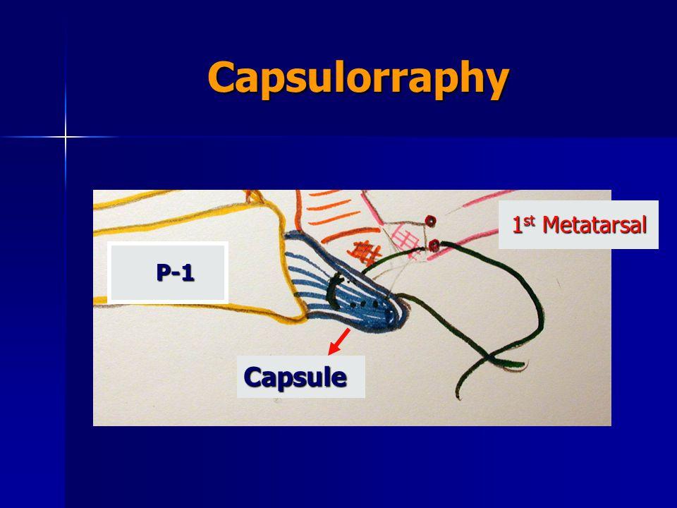 Capsulorraphy 1st Metatarsal P-1 Capsule