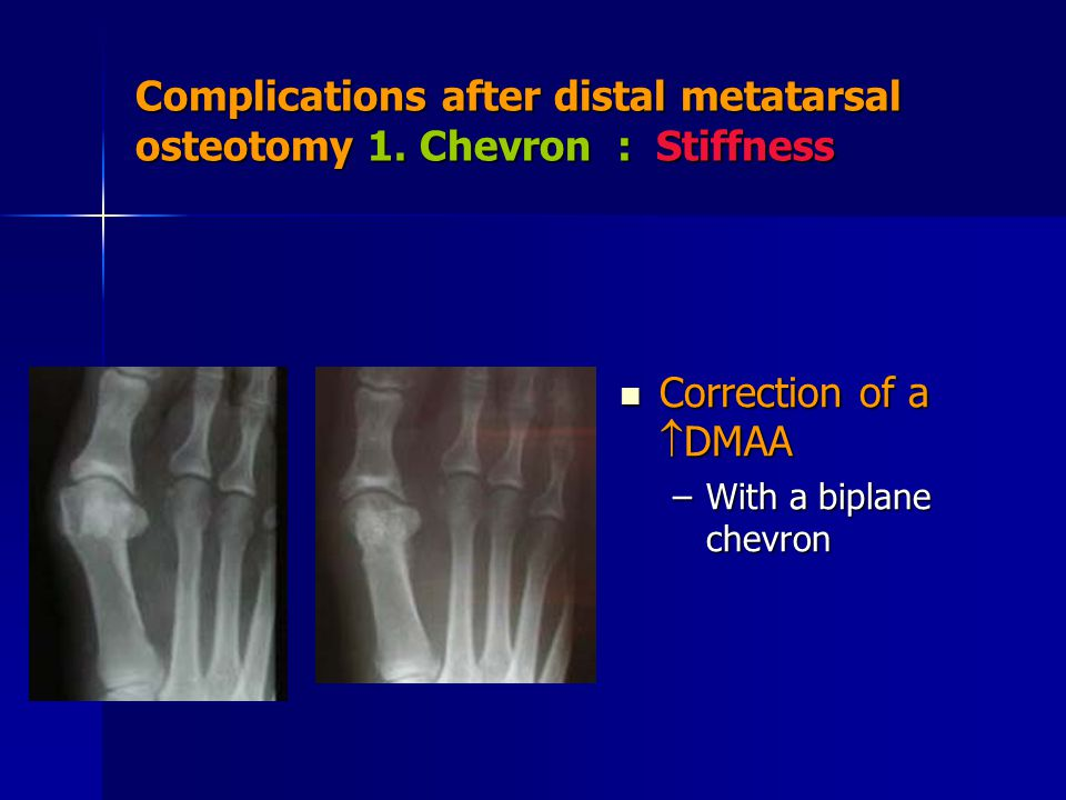 Complications after distal metatarsal osteotomy 1. Chevron : Stiffness