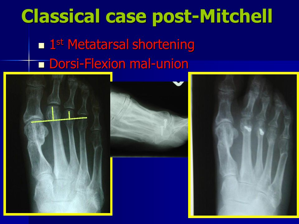 Classical case post-Mitchell