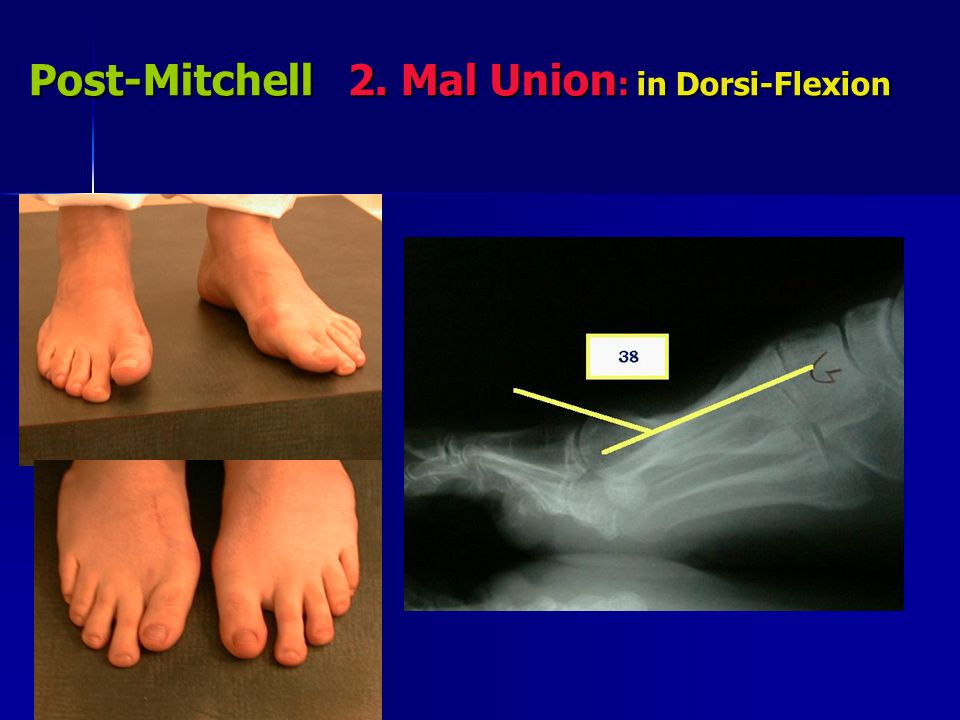 Post-Mitchell 2. Mal Union: in Dorsi-Flexion